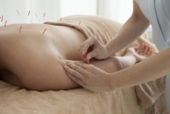 MI Spine and Pain_Blog 2_Acupuncture