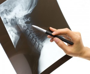 xray pointing with pen